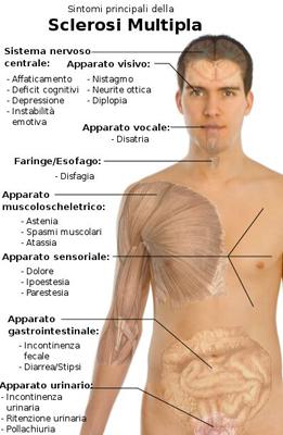 sclerosi multipla schema